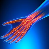 Orthopédie Conseil 47 - CAUDECOSTE