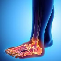 Orthopédie Conseil 46 - CAUSSADE